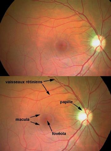 centre-ophtalmologie-la-ciotat-docteur-jerome-madar-materiel-fond-d-oeil-02-02