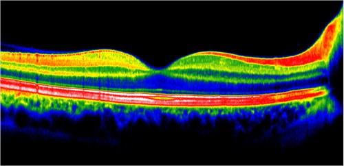 centre-ophtalmologie-la-ciotat-docteur-jerome-madar-materiel-oct-ou-tomographie-en-coherence-optique-03