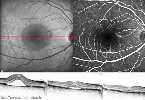 centre-ophtalmologie-la-ciotat-docteur-jerome-madar-materiel-oct-ou-tomographie-en-coherence-optique-04