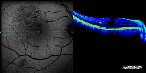 centre-ophtalmologie-la-ciotat-docteur-jerome-madar-materiel-oct-ou-tomographie-en-coherence-optique-05