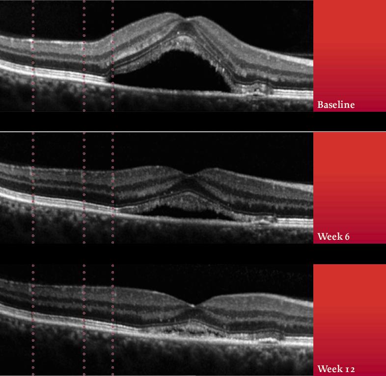 centre-ophtalmologie-la-ciotat-docteur-jerome-madar-materiel-oct-ou-tomographie-en-coherence-optique-06