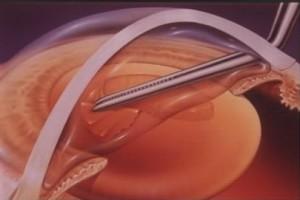 centre-ophtalmologie-la-ciotat-jerome-madar-chirurgie-de-la-cataracte-02