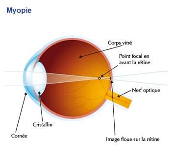 les-maladies-ophtalmologiques-des-yeux-myopie-01