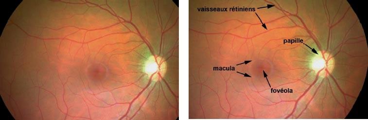 centre-ophtalmologie-la-ciotat-docteur-jerome-madar-materiel-fond-d-oeil-02