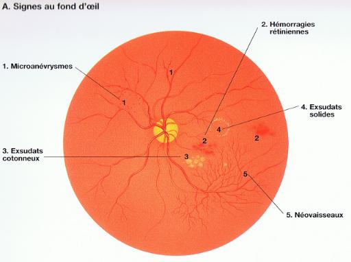 centre-ophtalmologie-la-ciotat-docteur-jerome-madar-materiel-fond-d-oeil-03