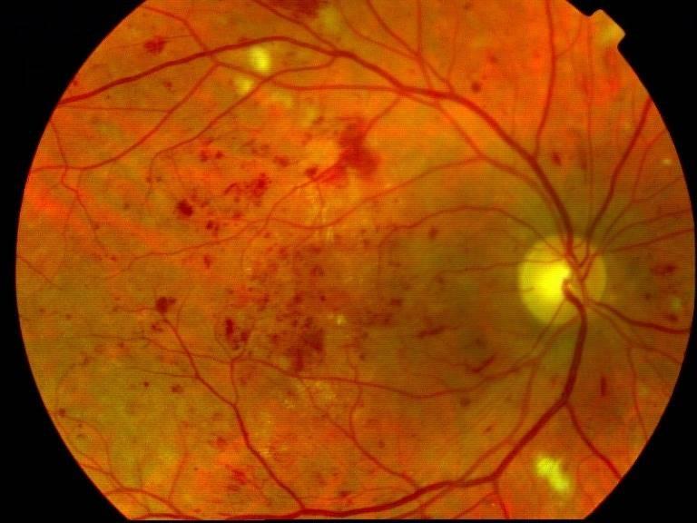 centre-ophtalmologie-la-ciotat-docteur-jerome-madar-materiel-fond-d-oeil-04