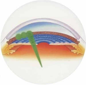 centre-ophtalmologie-la-ciotat-docteur-jerome-madar-materiel-laser-slt-02