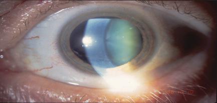 les-maladies-ophtalmologiques-des-yeux-cataracte-01