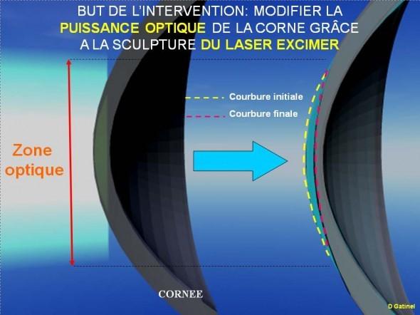 centre-ophtalmologie-la-ciotat-docteur-jerome-madar-chirurgie-refractive-au-laser-excimer-06