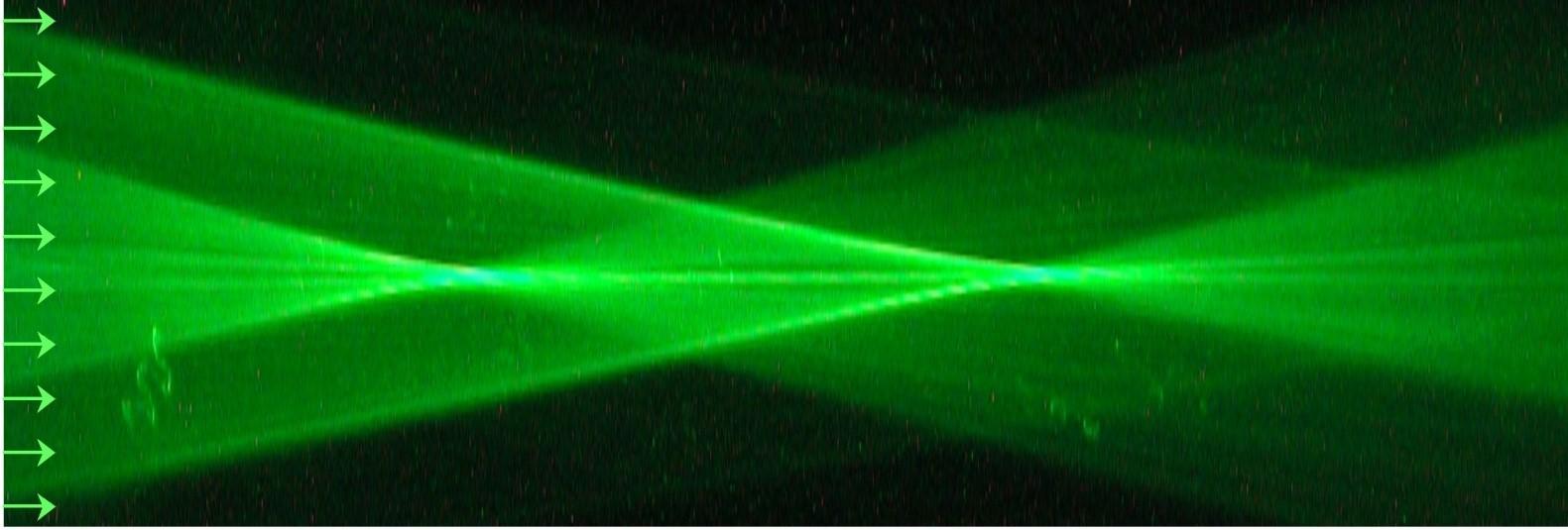 centre-ophtalmologie-la-ciotat-docteur-jerome-madar-chirurgie-refractive-au-laser-excimer-09