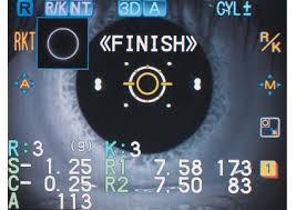 centre-ophtalmologie-la-ciotat-docteur-jerome-madar-materiel-refraction-03