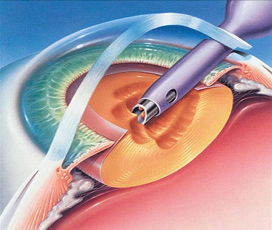 centre-ophtalmologie-la-ciotat-jerome-madar-chirurgie-de-la-cataracte-03
