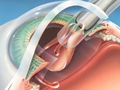 centre-ophtalmologie-la-ciotat-jerome-madar-chirurgie-de-la-cataracte-05
