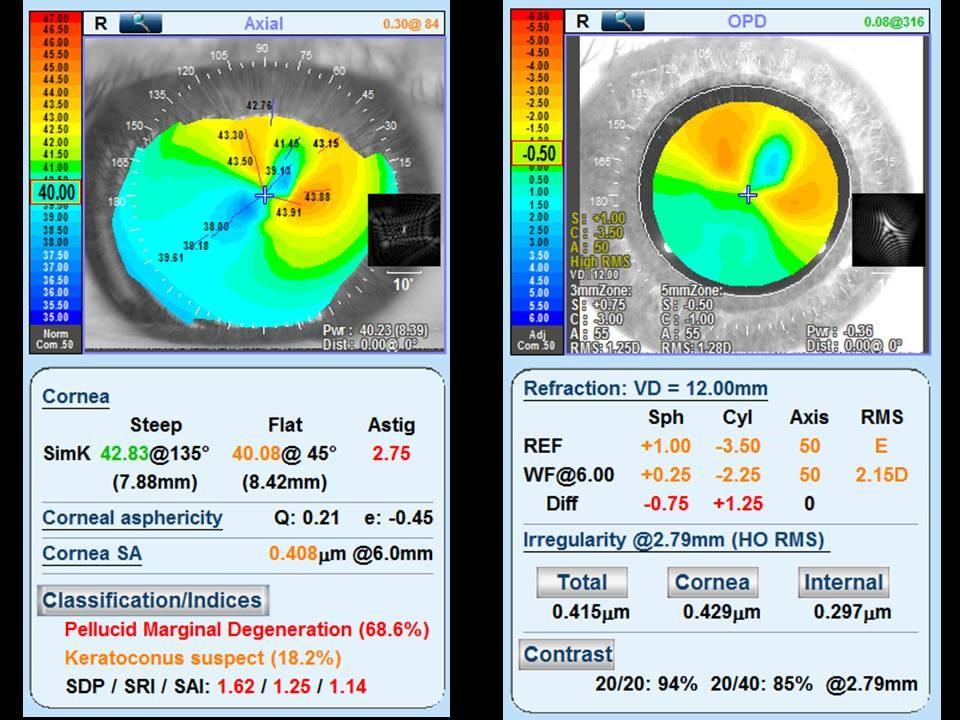 docteur-jerome-madar-la-ciotat-ophtalmologue-la-chirurgie-refractive-au-laser-excimer-deroulement-pratique-02