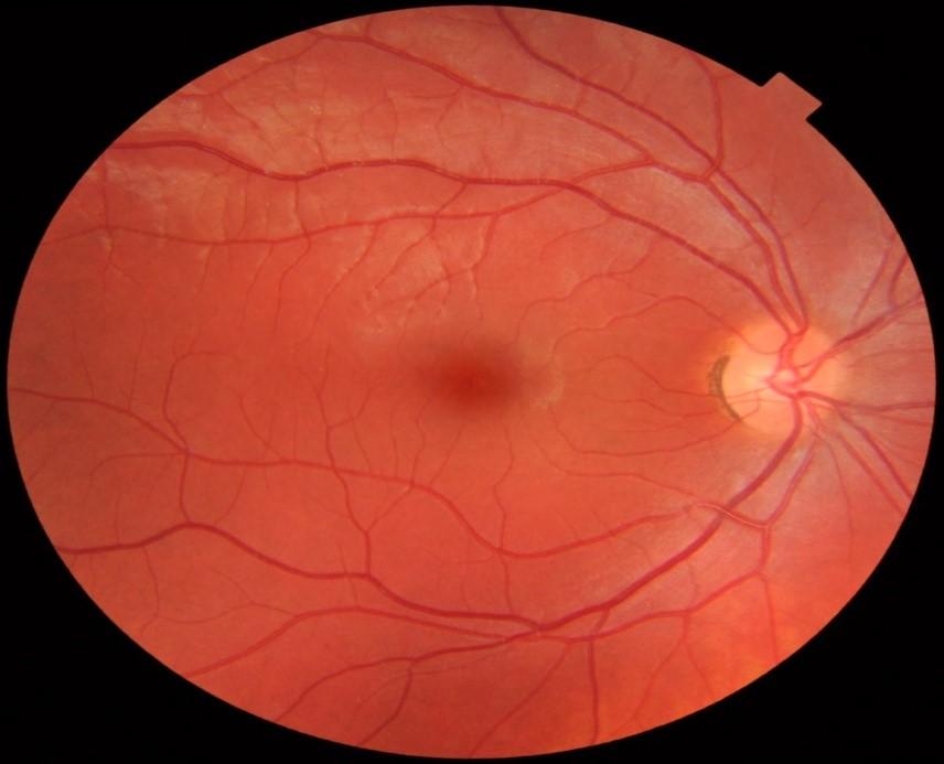 docteur-jerome-madar-la-ciotat-ophtalmologue-la-chirurgie-refractive-au-laser-excimer-deroulement-pratique-03