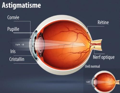 les-maladies-ophtalmologiques-des-yeux-astigmate-02