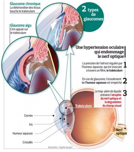 les-maladies-ophtalmologiques-des-yeux-glaucome-02